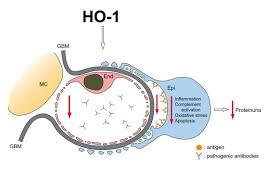 immunopathogenic mechanism and therapeutic intervention in an