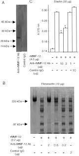 macrophage metalloelastase as a major factor for glomerular injury