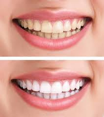 get rid of yellow teeth stained nails dandruff etc with this