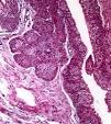 <b>Carcinoma</b> de <b>células</b>