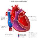 <b>Atrial Septal</b> (AS) <b>Heart Defects</b>, Symptoms &amp; Treatment in Children