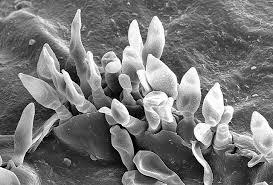 Dothideomycetes