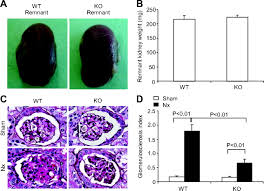 microsomal prostaglandin e synthase 1 deletion retards renal