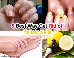 5 best way how to get rid of yellow nails quick fashioncraze