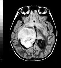 Brain Mri Anatomy Mri Anatomy And Positioning Series