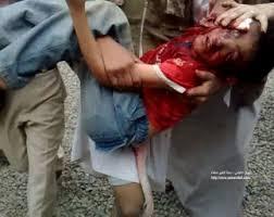 الى من لدية ضمير في اليمن ... هناك مأساة حقيقه في جامعه صنعاء .. والاعلام يضللكم ... اتقوا الله Images?q=tbn:ANd9GcTEu2cbohBYHRUo6aUOpzI3-eptEw7F9RmltUWrjYfrnPHiMpOF&t=1