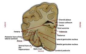 Sheep Brain Anatomy Game Graciecorrigan Northfield Neuroscience