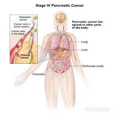 pancreatic cancer treatment pdq u2014patient version national