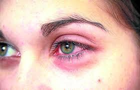 Xeroftalmia – Dicas para tratamento