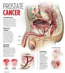 prostate-cancer-symptoms ��� Secrets of the Fed