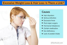 Measures To Prevent Hair Loss Excessive Weight Loss U0026 Hair Loss Is There A Link
