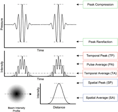 Ultrasonic neuromodulation   IOPscience IOPscience Standard image