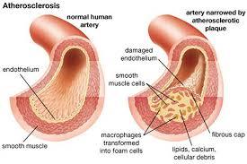Diabetic Atherosclerosis with photos videos images?q=tbn:ANd9GcTOF8pW1vhdYVOw4Q6QpiGjSOXuiQGXFBSPQ1UQ3XQpGHBtNoJ-wbsnijSRAA