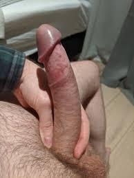 foreskin penis|Foreskin - Wikiwand