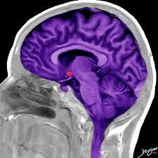 Brain Mri Anatomy Mri Side View Of The Brain In Purple Art In Anatomy