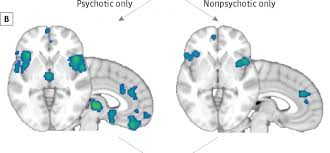What Can fMRI Tell Us About Mental Illness    Neuroskeptic