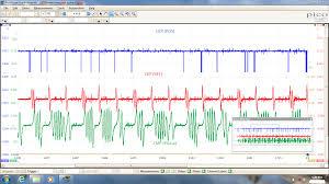 nissan maxima no spark jwr automotive diagnostics february 2016