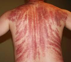 Долго ли держатся синяки после баночного массажа
