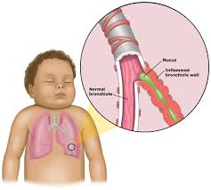 ما هو التهاب الشعيبات الهوائية؟ وكيف يحدث؟ Bronchiolitis_anatomy