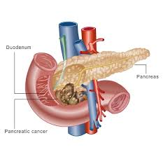 pancreatic cancer cures may