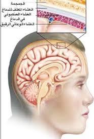 شرح كامل عن مرض السحايا 115015_as_main.JPG