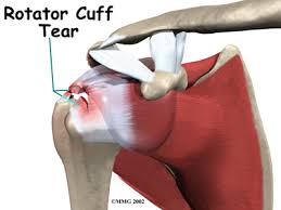 rotator cuff tear after car accident