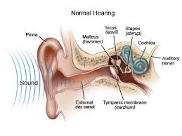 a cochlear implant.