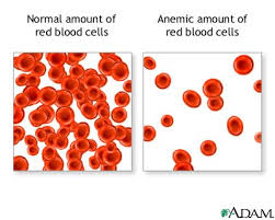 http://t2.gstatic.com/images?q=tbn:chEqpoWjHtzCyM:http://www.daviddarling.info/images/anemia_red_blood_cells.jpg&t=1