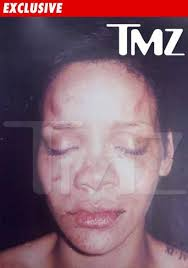 Rihanna Beating Picture � TMZ
