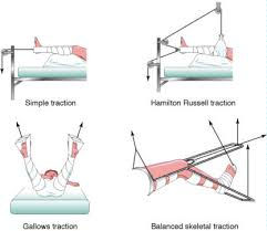 bucks traction