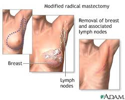 removed by lumpectomy.
