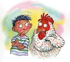 Chicken Pox Outbreak