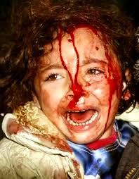 صرخة طفل فلسطينى ( للكبار فقط ) / بقلم : عاشق فن إرتواء العقل