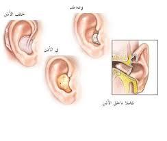 الإعاقة السمعية . مفهومها ومعلومات عنها واهداف التعليمة للوحده