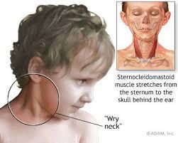 کجی گردن در بچه ها